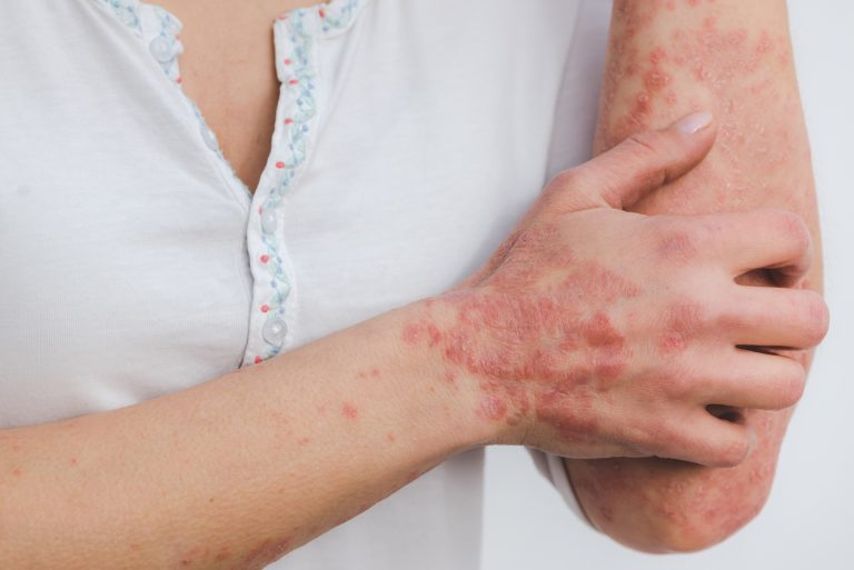 Psorijaza – bolest koja utječe na kvalitetu života
